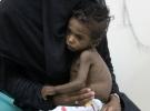Yemen için insani yardım konferansı 26 Şubat'ta düzenlenecek