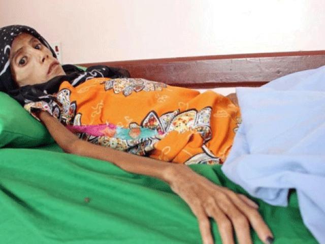 Yemen'deki insanlık dramının son örneği: 12 yaşında 10 kilo kalan Fatma