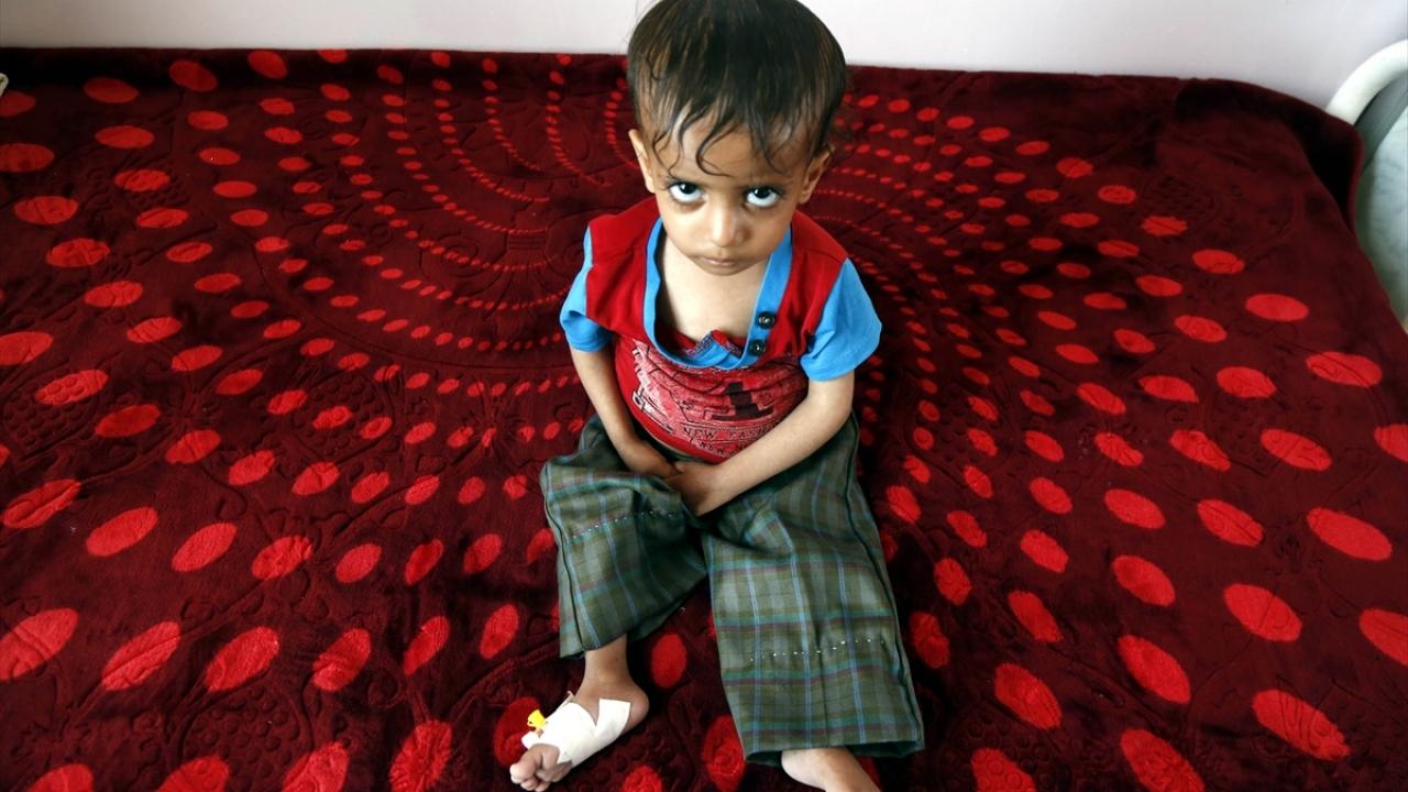 Yemende kıtlık en çok çocukları etkiliyor