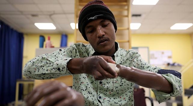 3 boyutlu protez yazıcılar savaş mağdurlarına umut veriyor