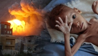 Yemen'deki savaşa dünya gözlerini kapattı