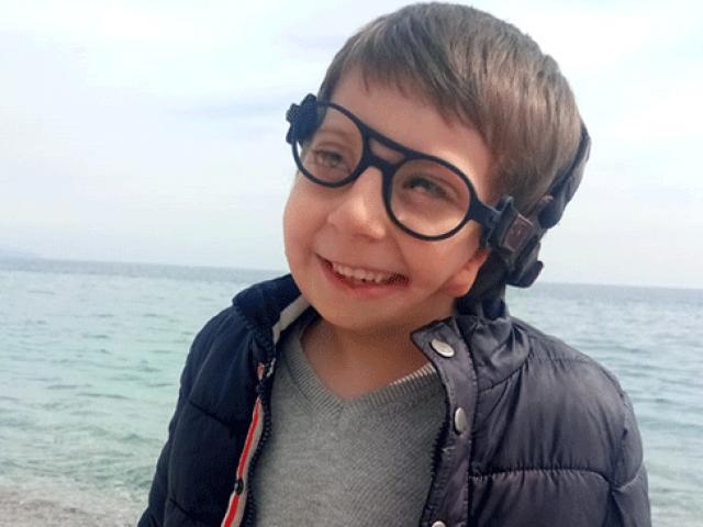 Görme engelli çocuğa 3D teknolojisiyle gözlük üretildi