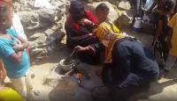 Yemen'de açlık, iç savaşı gölgede bıraktı