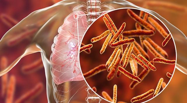 Tüberküloz tanı ve tedavi rehberi güncellendi