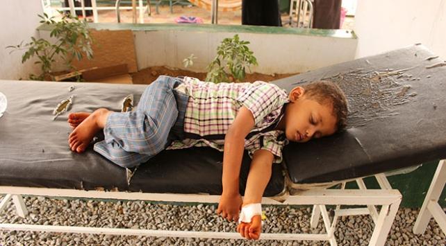 Yemende 4 ayda 10 bin kolera vakası görüldü