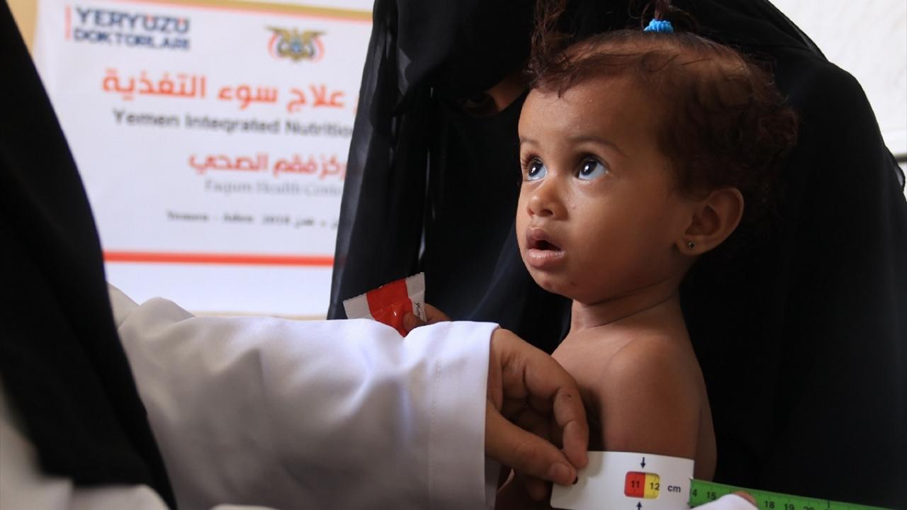 Yeryüzü Doktorları'ndan tıbbi beslenme desteği