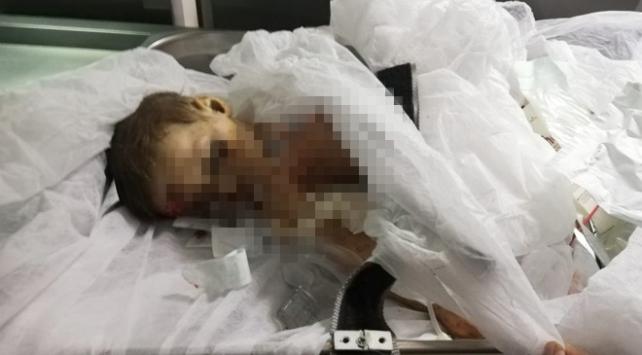 9 aylık Muhammed bebek YPG/PKKnın kurbanı oldu