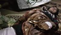 Suriye Milli Ordusu'ndan yaralı teröriste insani müdahale