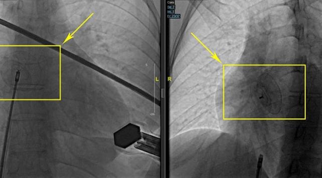 Kalpteki deliğe ameliyatsız çözüm