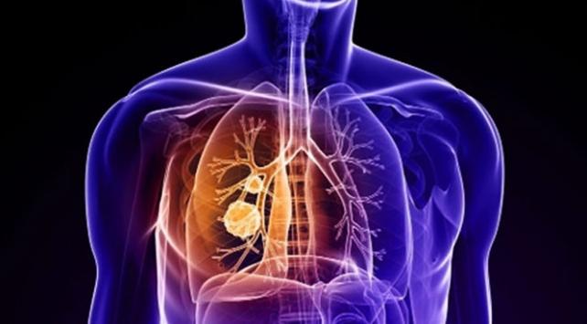 Akciğer kanseri görülme sıklığı artıyor