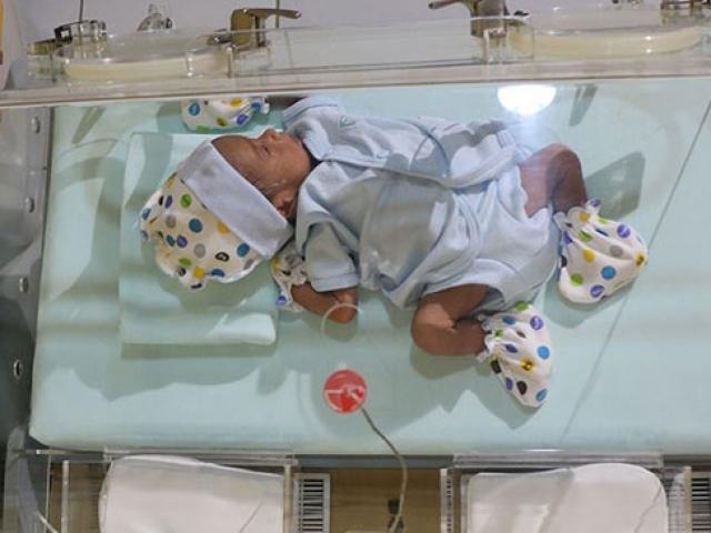 Dünyada her iki saniyede bir bebek prematüre doğuyor