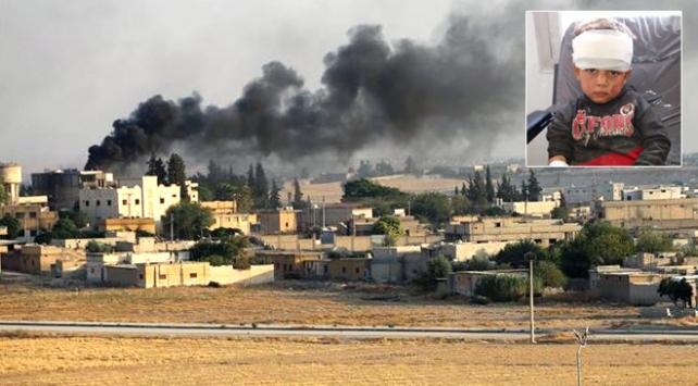 PKK/YPG Tel Abyadda okulu vurdu: 3 sivil öldü