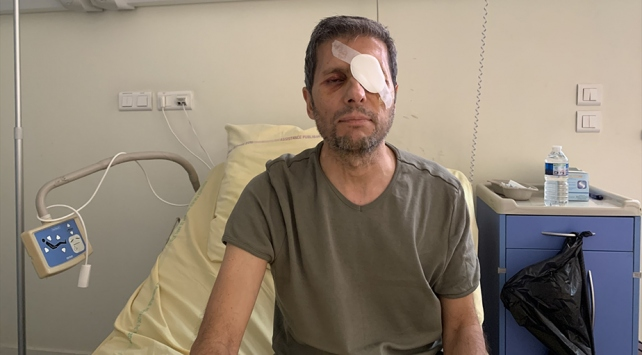 Pariste gözünden yaralanan AA Foto Muhabiri Yalçın, yaşadıklarını anlattı