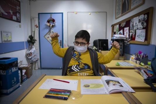 """Down sendromlu lösemi hastası çocukta gelişen """"Hepatit C"""" için özel tedavi"""
