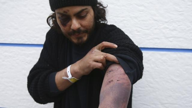 Mısırlı düzensiz göçmen: Yunan askerleri beni darbetti
