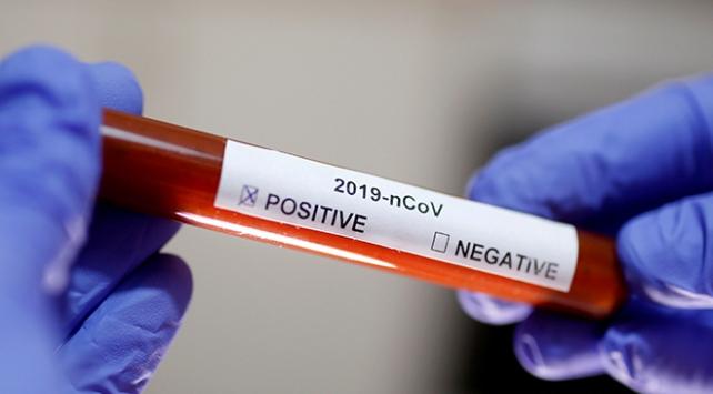 Güney Korede görevli Amerikan askerinde koronavirüs tespit edildi