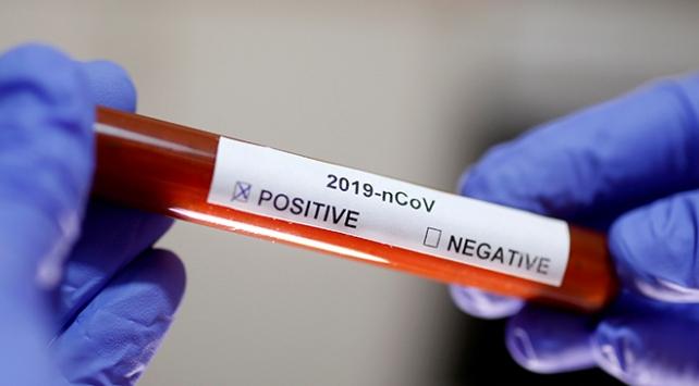 İranlı bir yetkili daha koronavirüse yakalandı