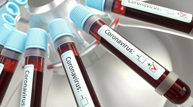 Kolombiyada ilk koronavirüs vakası