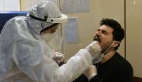 Prof Dr. Aşkın: Koronavirüs, influenzadan daha öldürücü değil