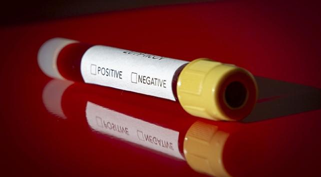 Koronavirüs gündemini takip ederken nelere dikkat edilmeli?