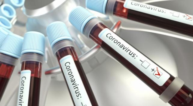 Burkina Fasoda koronavirüs nedeniyle ilk ölüm