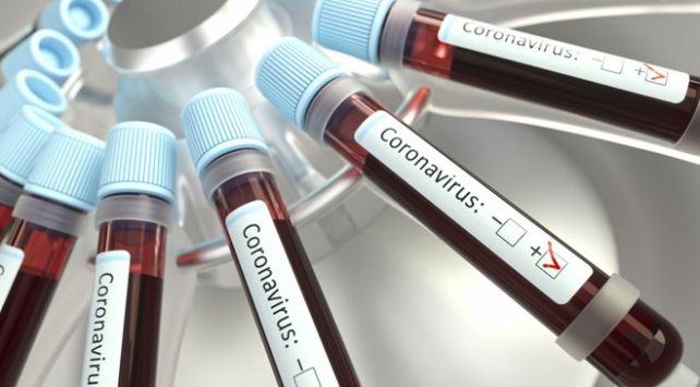 Suriyede ilk koronavirüs vakası