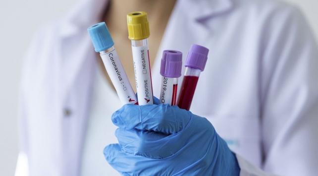 Bakanlık koronavirüs aşısı için harekete geçti