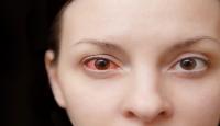 Koronavirüs gözde konjonktivite neden olabiliyor