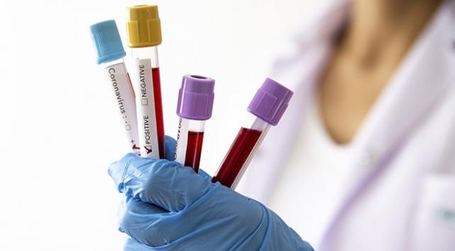 Dünyada koronavirüsten iyileşenlerin sayısı 330 bini aştı