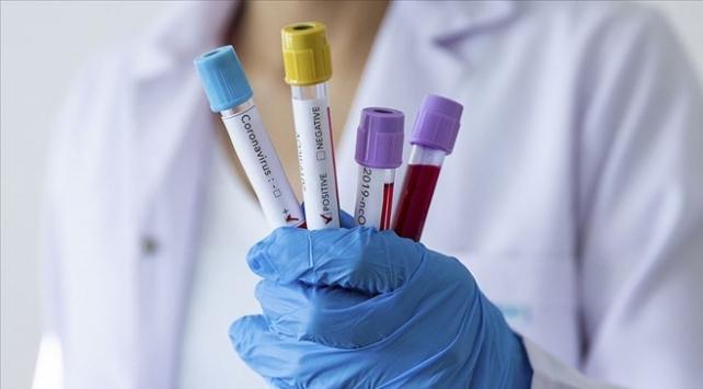 Koronavirüste vaka sayısı 1 milyon 600 bini geçti