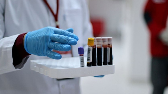 Plazma tedavisi umut veriyor