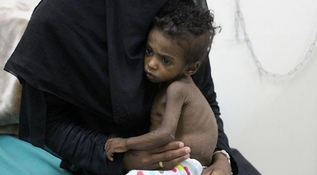 BM, Yemende çocuk ölümleriyle suçlanan Suudi Arabistanı listeden çıkardı