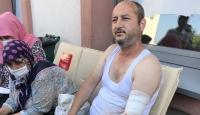 Sakarya'daki patlamada yaralanan işçi olay anını anlattı