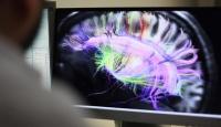 ABD'de 'beyin yiyen amip' vakasına rastlandı