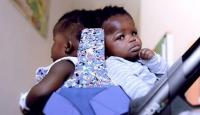 Afrikalı siyam ikizleri 18 saatlik operasyonla ayrıldı