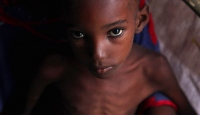 BM: Koronavirüs tedbirleri Afrika'da gıda krizini artırıyor
