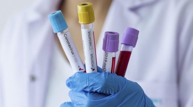 ABD 150 milyon hızlı koronavirüs testi satın alacak