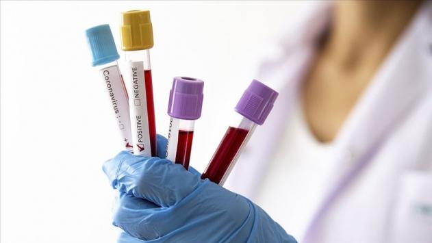 Tıp öğrencisi Merve koronavirüs kurbanı oldu