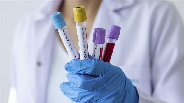 11 Eylül koronavirüs tablosu açıklandı… Bugünkü vaka sayısı…