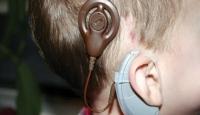 İşitme Problemine Çözüm: Biyonik Kulak
