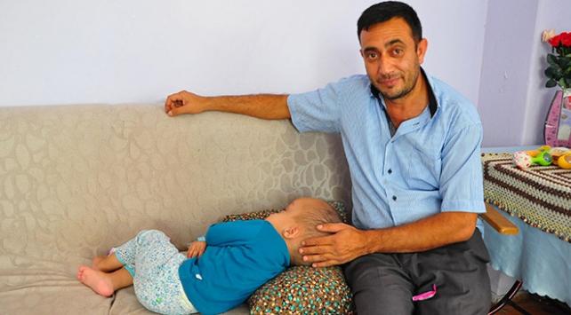 Hidransefali hastası Sercanın sağlığı iyiye gidiyor