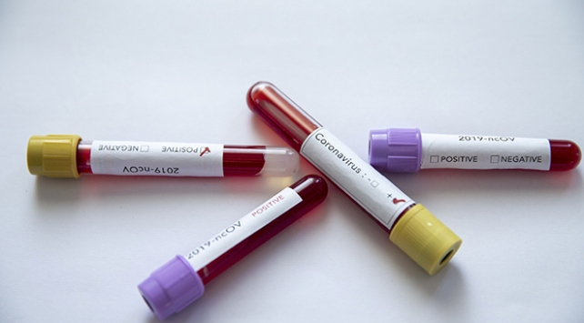 Yalovasporda COVID-19 testi pozitif çıkanların sayısı 25e yükseldi