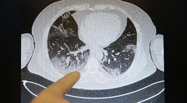 Bilim Kurulu Üyesi Turandan tomografi yorumu: Bu hastalar acaba nasıl nefes alabiliyor?