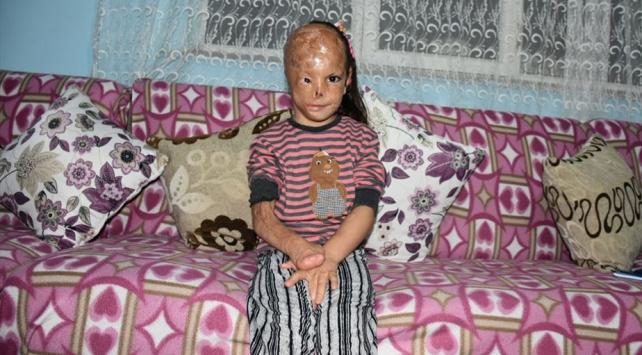 Bebekken yüzü yanan 5 yaşındaki Dilara ameliyat için yardım bekliyor