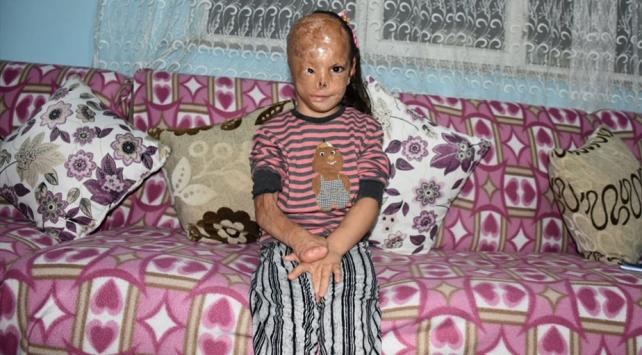 Bebekken yüzü yanan Dilaranın tedavisi Akdeniz Üniversitesinde yapılacak