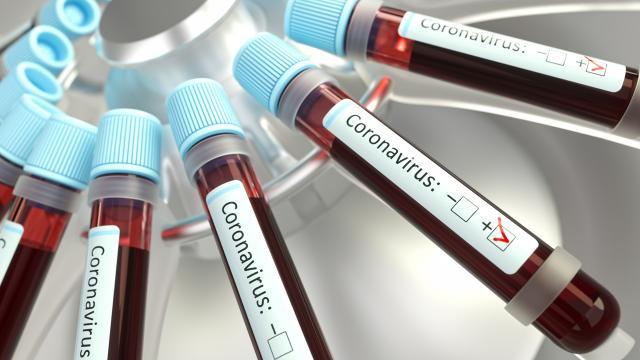 18 Aralık koronavirüs tablosu açıklandı… Bugünkü vaka sayısı…