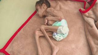 Yemen'de açlıktan ölenlere bu yıl milyonlarca kişi eklenebilir