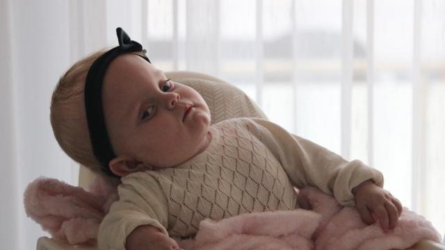 Sağlık Bakanlığının sahip çıktığı Alicia bebek 1 yaşına girdi