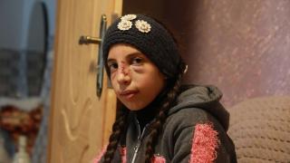Saldırıdan zor kurtulan Filistinli küçük kız korku içinde yaşıyor