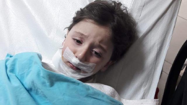 Küçük çocuk sokak köpeklerinin saldırısında yaralandı